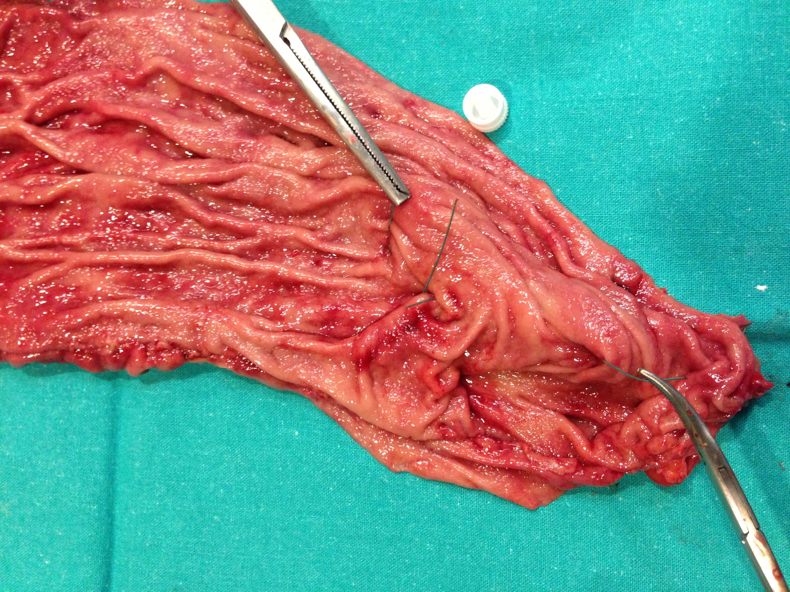 Reduccion de abdomen sin cirugia medellin